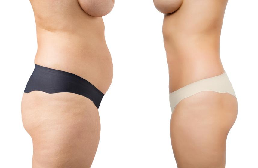 abdomen marcado con dieta