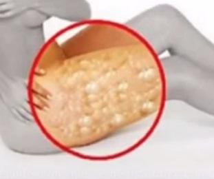 celulitis de las piernas